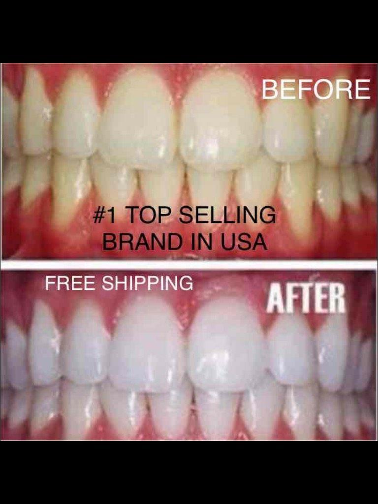 Organic Charcoal Teeth Whitening